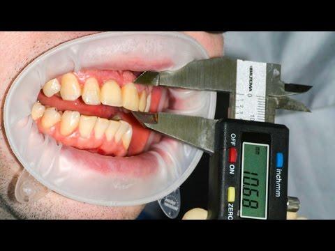 Можно ли вырывать зубы самому себе