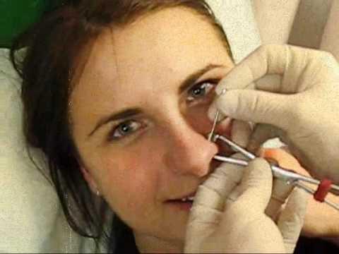 Как сделать пирсинг в носа