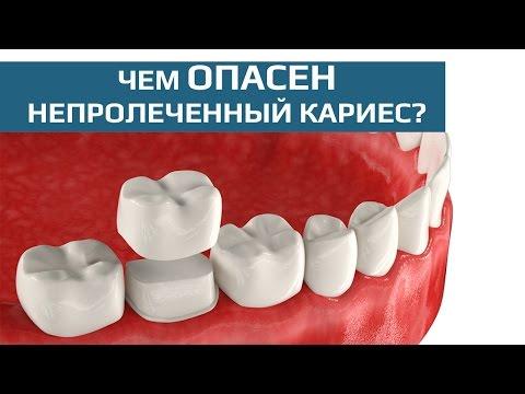 Как сделать коронку на зуб своими руками