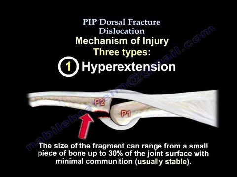 Metacarpophalangeal joint dislocation