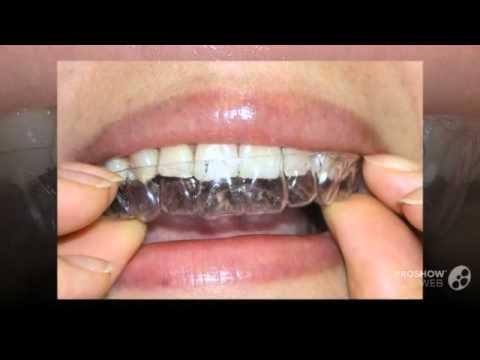Как сделать белыми зубы за день
