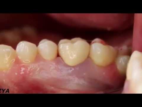 Коронки на жевательные зубы форум 3