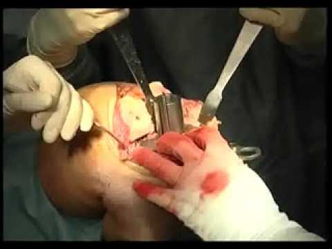 операция по замене сустава стоиомсть