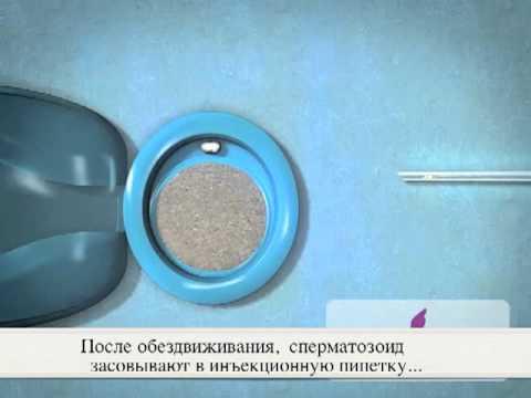 intratsitoplazmaticheskoy-inektsii-spermatozoida-iksi