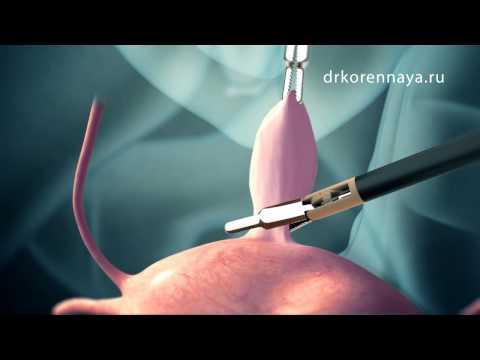 Хирургическое лечение кисти руки в ИЗРАИЛЕ копчиковая киста после